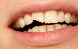 К чему снится поломанный зуб сонник