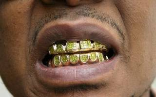 К чему снятся золотые зубы сонник