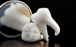Почему во сне выпадают зубы сонник