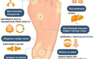 Почему после сна болят ноги сонник