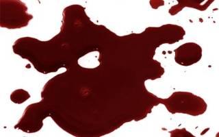К чему снится кровь из заднего прохода сонник
