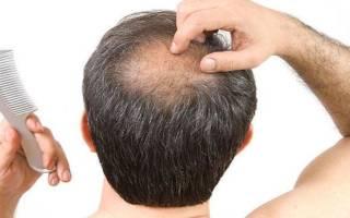 К чему снится выпадение волос на голове сонник