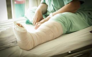 К чему снится сломать ногу во сне сонник