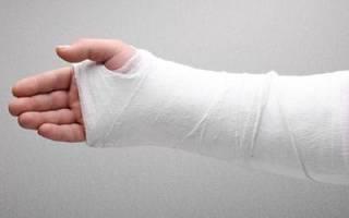К чему снится сломать руку во сне сонник