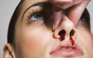 К чему снится разбитый нос с кровью сонник