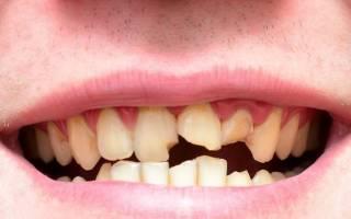 К чему снится сломался зуб без крови сонник