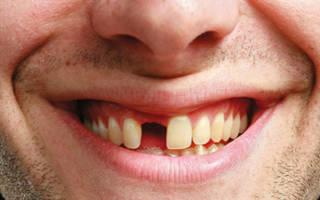 Во сне выпали нижние зубы сонник
